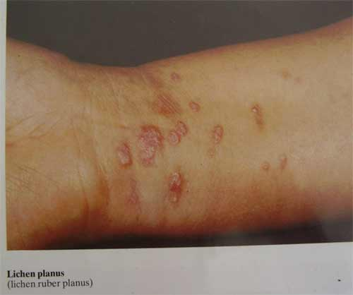 Lichen Planus Mayo Clinic Quotes